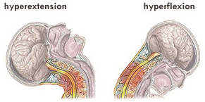 hyperextension-hyperflexion